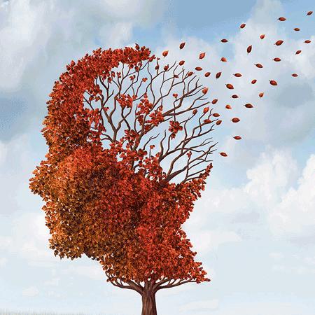 Alzheimer`s Disease Level 3