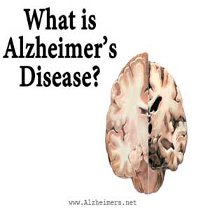 Alzheimer's Disease level 1